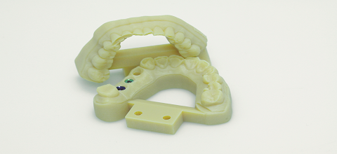 3D printed dental model with analogs printed in VeroGlaze (MED620).
