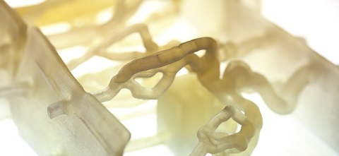 3D printed models based on patient CT scans are used for pre-surgical planning and medical device testing.