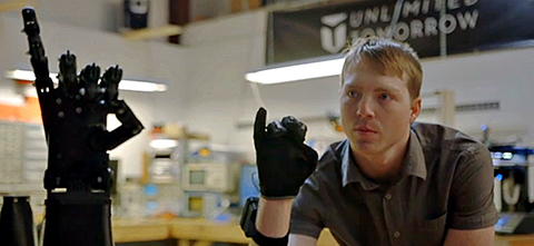 Unlimited Tomorrow Advances Prosthetics with 3D Printing