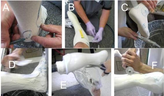 Traditional process for making custom ankle-foot orthotics