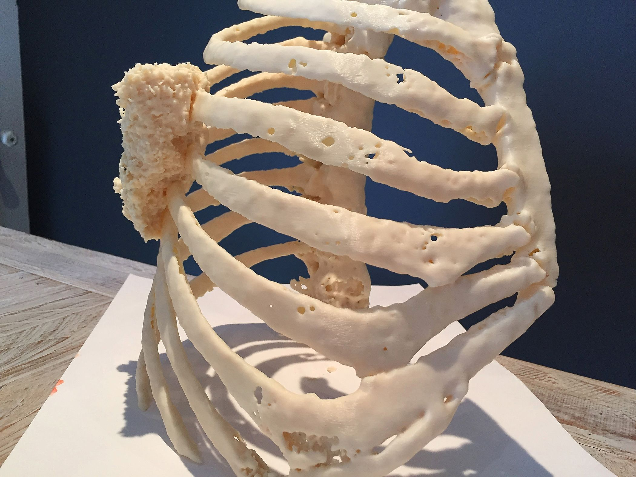 This patient-specific model of a thoracic wall tumor was 3D printed using the Stratasys Fortus 450mc.