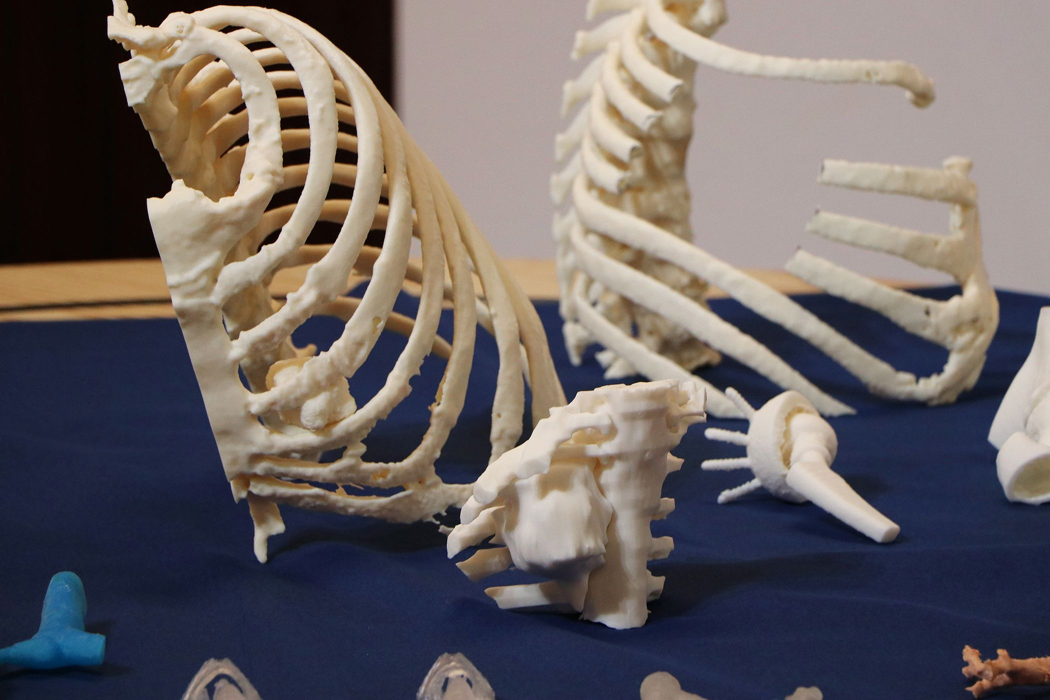 3D printed models of the thoracic wall enable surgeons to plan, perform and perfect the resection on the 3D model ahead of the actual surgery.