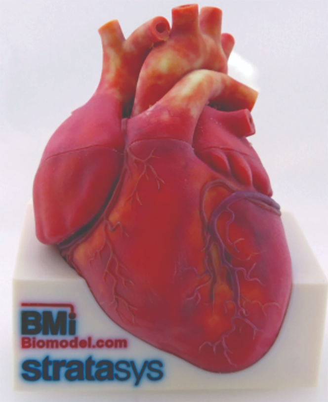 BMI's heart model shows the Stratasys J750's ability to print realistic colors.