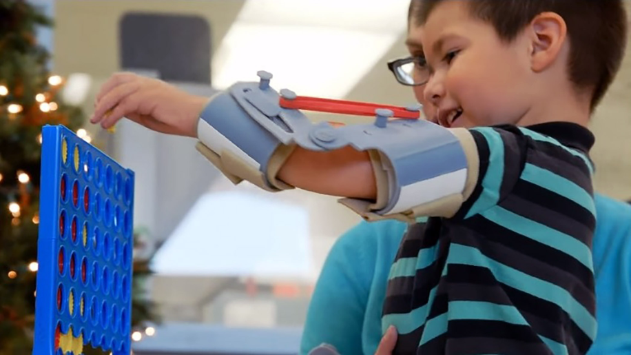 Despite having arthrogryposis, Noel can bend his arms and play more using his custom 3D printed exoskeleton arms.