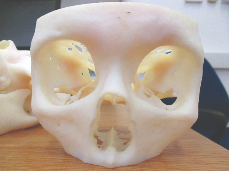 3D printed model of a patient's facial bone structure