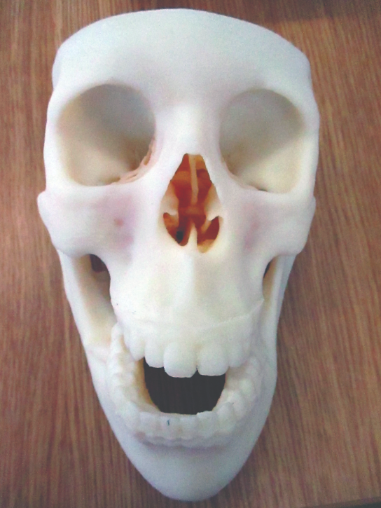 3D printed models help surgeons plan treatment for facial and jaw operations.