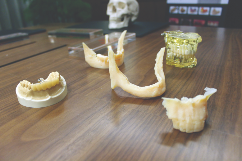 3D printed dental models used to test fitting of fixtures