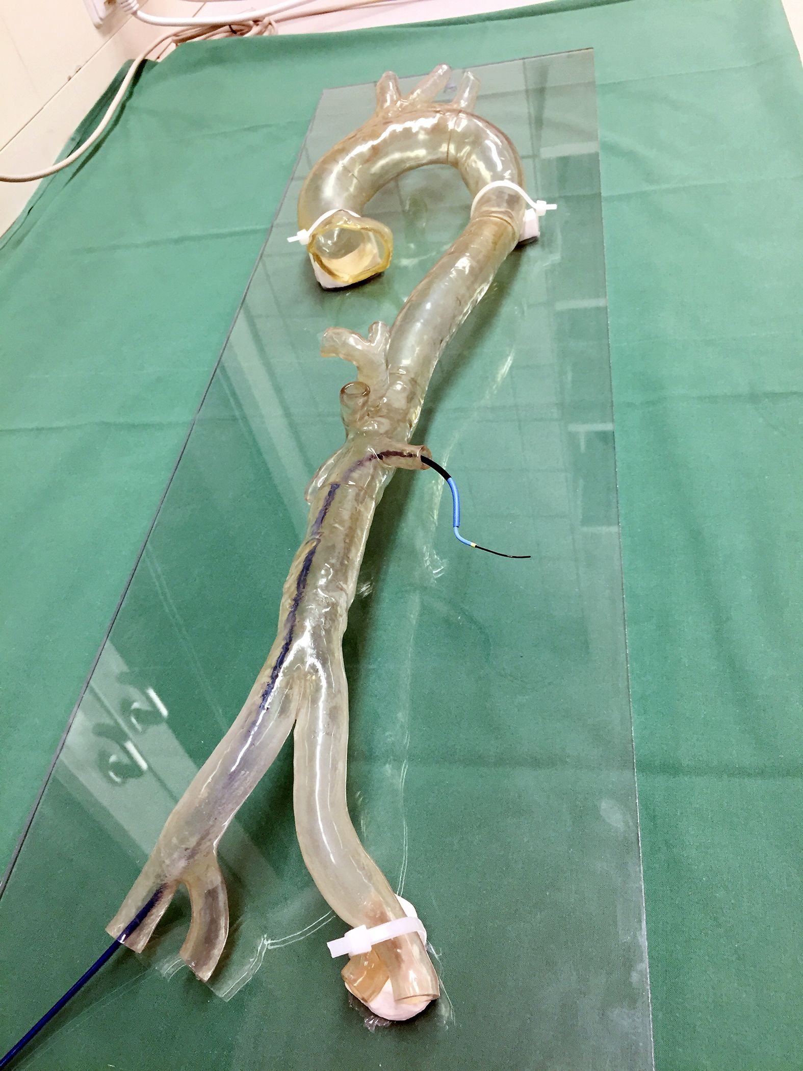 Transparent 3D printed model of a patient-specific aortic arch used by the University Hospital Mainz to practice complex endovascular surgeries.
