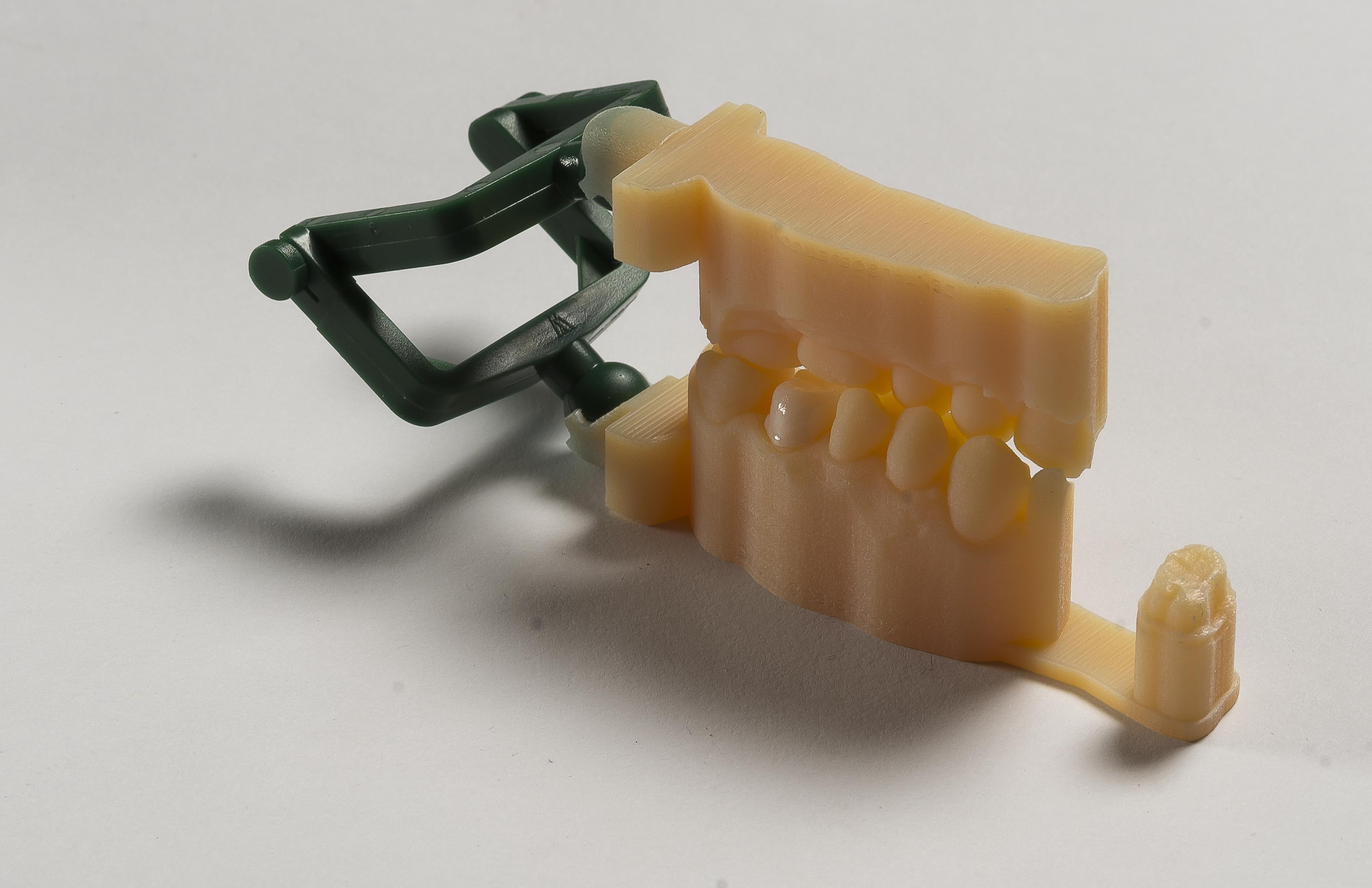 3d printing dental implants