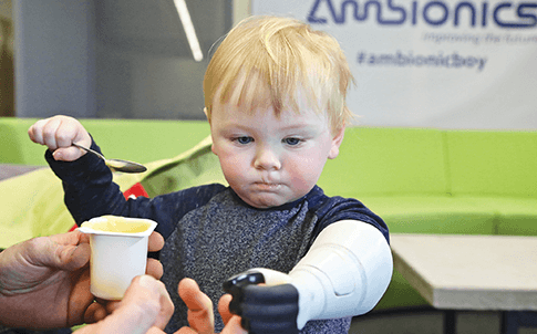 With DAHB technology, Sol is able to manually operate his prosthetic arm or get assistive power from a motorized pump.
