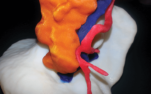 3D printed spleen model showing the details needed to help better prepare surgeons
