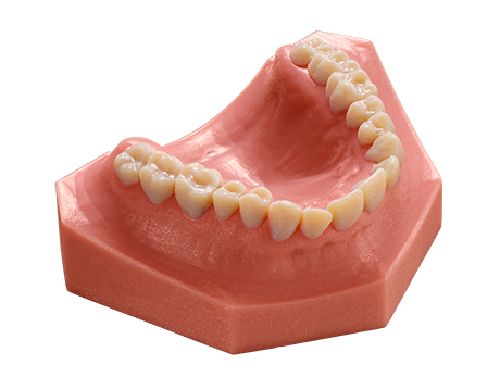 3D printed dental mold
