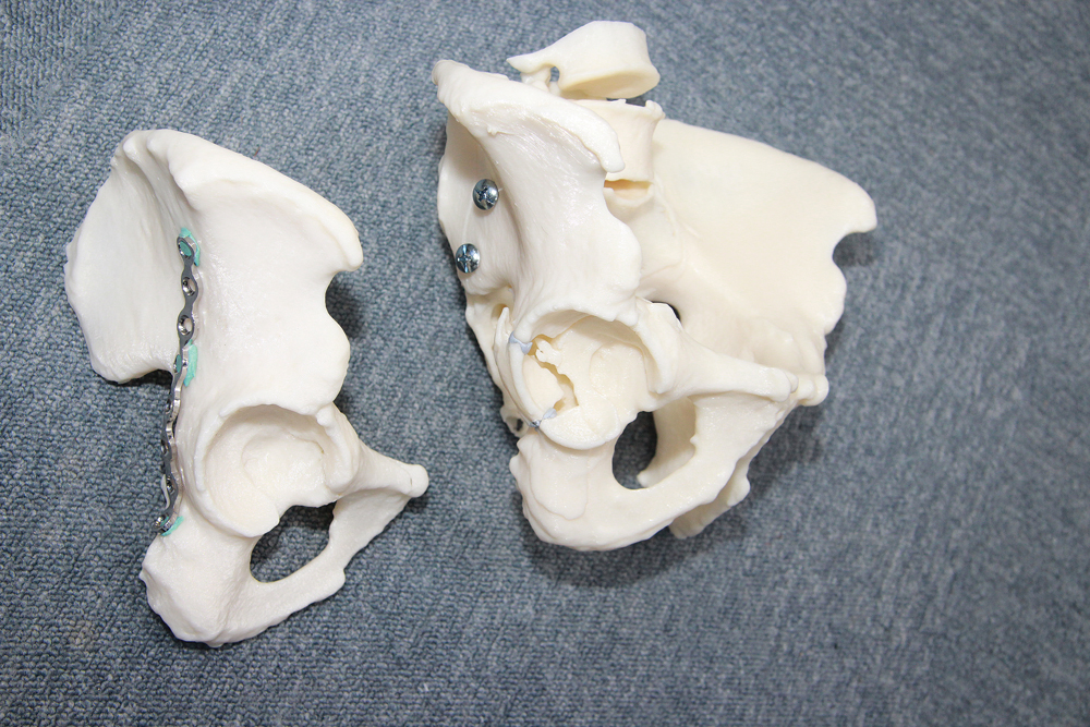 side view of 3d printed tailbone